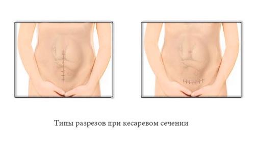 кесарево сечение